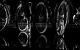 "Спектакль: <b><i>Пьяные</i></b><br /><span class=""normal"">Лаура— Яна Гладких<br />Рудольф— Армэн Арушанян<br />Матиас— Алексей Краснёнков<br />Габриэль— Николай Сальников<br />Макс— Алексей Варущенко<br /><i></i><br /><span class=""small"">© Екатерина Цветкова</span></span>"